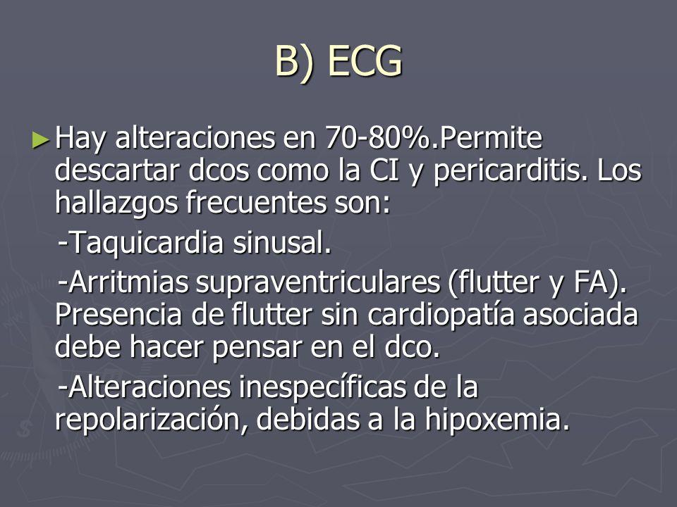 B) ECG Hay alteraciones en 70-80%.Permite descartar dcos como la CI y pericarditis. Los hallazgos frecuentes son: Hay alteraciones en 70-80%.Permite d