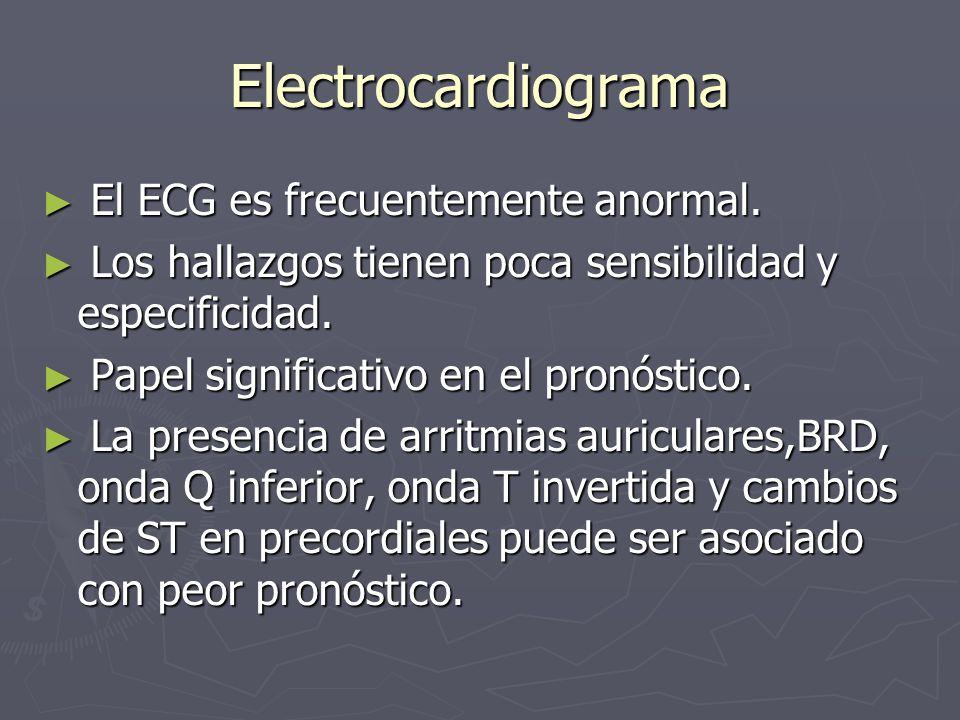 Electrocardiograma El ECG es frecuentemente anormal. El ECG es frecuentemente anormal. Los hallazgos tienen poca sensibilidad y especificidad. Los hal