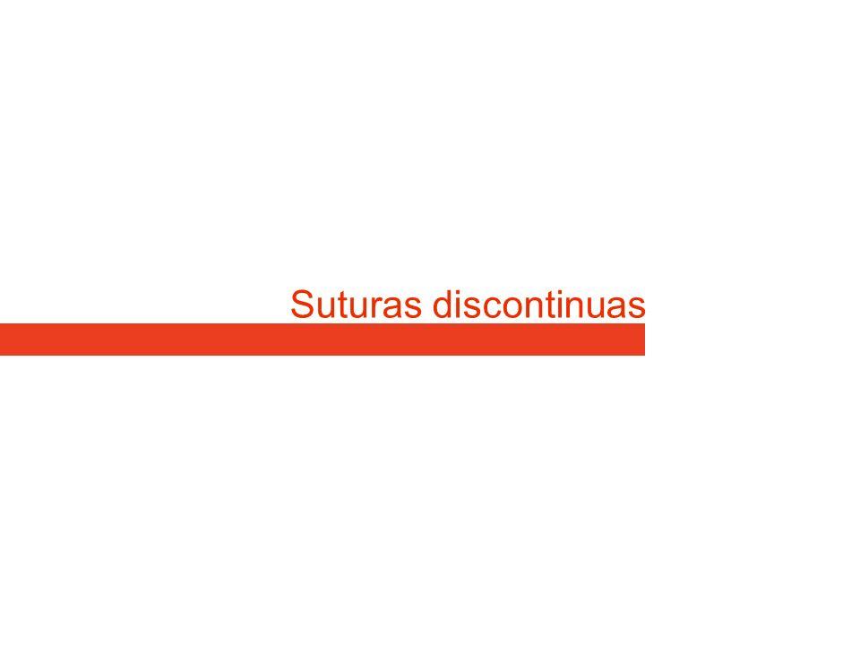 Suturas discontinuas