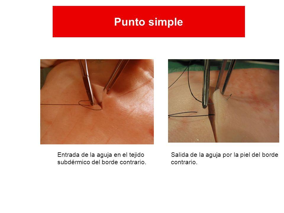 Entrada de la aguja en el tejido subdérmico del borde contrario. Salida de la aguja por la piel del borde contrario. Punto simple