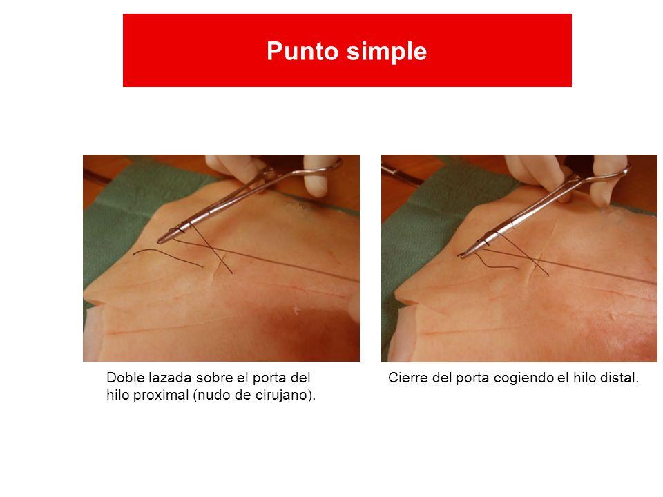 Doble lazada sobre el porta del hilo proximal (nudo de cirujano). Cierre del porta cogiendo el hilo distal. Punto simple