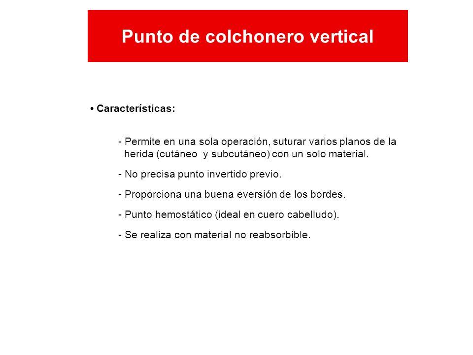 Características: Punto de colchonero vertical - Permite en una sola operación, suturar varios planos de la herida (cutáneo y subcutáneo) con un solo m