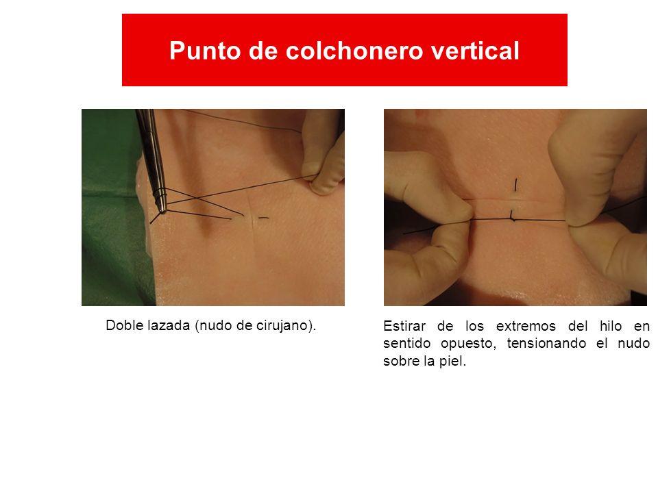 Doble lazada (nudo de cirujano). Estirar de los extremos del hilo en sentido opuesto, tensionando el nudo sobre la piel. Punto de colchonero vertical