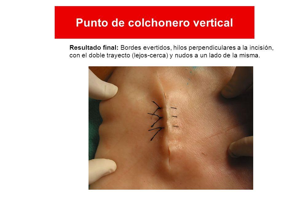 Resultado final: Bordes evertidos, hilos perpendiculares a la incisión, con el doble trayecto (lejos-cerca) y nudos a un lado de la misma. Punto de co