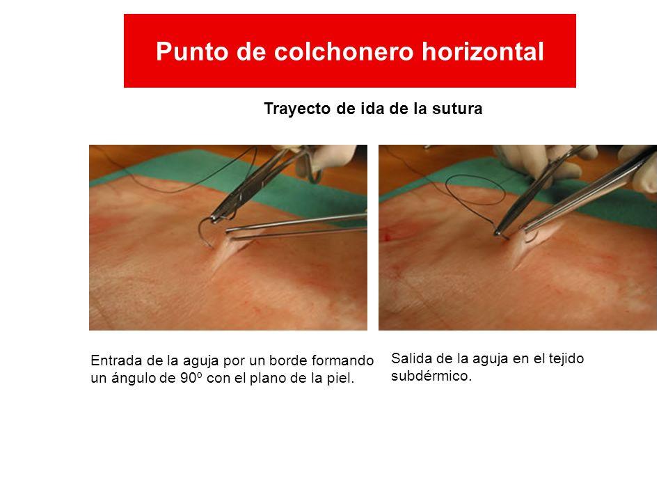 Entrada de la aguja por un borde formando un ángulo de 90º con el plano de la piel. Salida de la aguja en el tejido subdérmico. Trayecto de ida de la