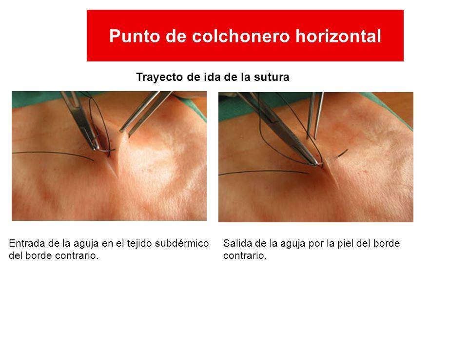 Trayecto de ida de la sutura Entrada de la aguja en el tejido subdérmico del borde contrario. Salida de la aguja por la piel del borde contrario. Punt