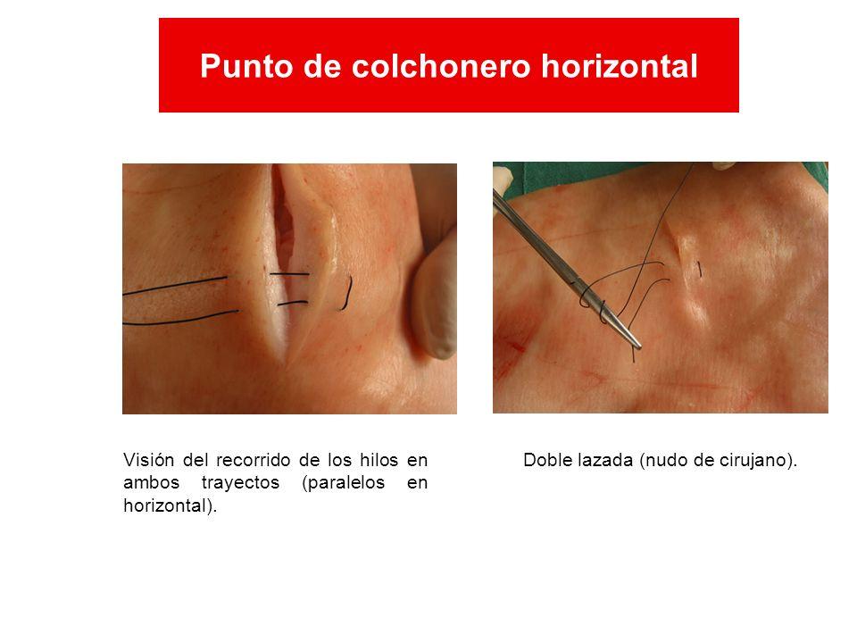 Visión del recorrido de los hilos en ambos trayectos (paralelos en horizontal). Doble lazada (nudo de cirujano). Punto de colchonero horizontal Punto