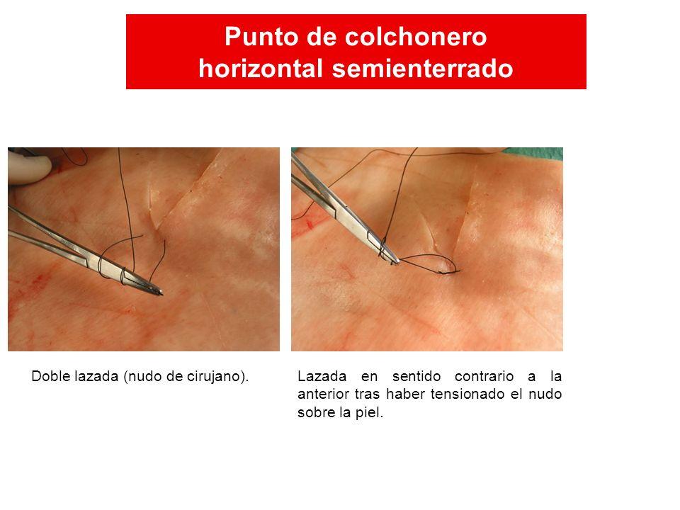 Lazada en sentido contrario a la anterior tras haber tensionado el nudo sobre la piel. Doble lazada (nudo de cirujano). Punto de colchonero horizontal