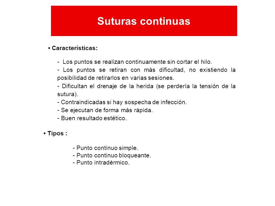 Características: - Los puntos se realizan continuamente sin cortar el hilo. - Los puntos se retiran con más dificultad, no existiendo la posibilidad d