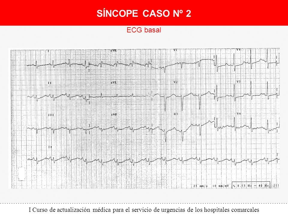 I Curso de actualización médica para el servicio de urgencias de los hospitales comarcales ECG basal SÍNCOPE CASO Nº 2