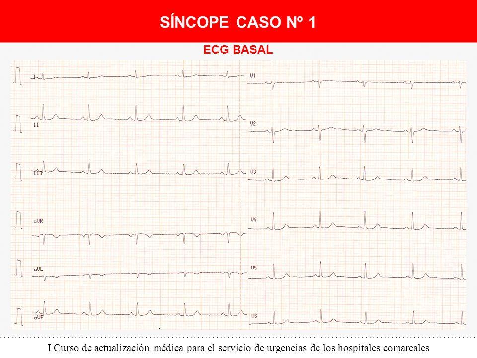 I Curso de actualización médica para el servicio de urgencias de los hospitales comarcales ECG BASAL SÍNCOPE CASO Nº 1