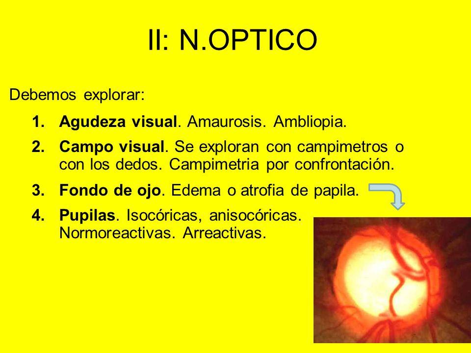 II: N.OPTICO Debemos explorar: 1.Agudeza visual. Amaurosis. Ambliopia. 2.Campo visual. Se exploran con campimetros o con los dedos. Campimetria por co