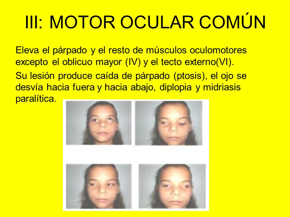 III: MOTOR OCULAR COMÚN Eleva el párpado y el resto de músculos oculomotores excepto el oblicuo mayor (IV) y el tecto externo(VI). Su lesión produce c