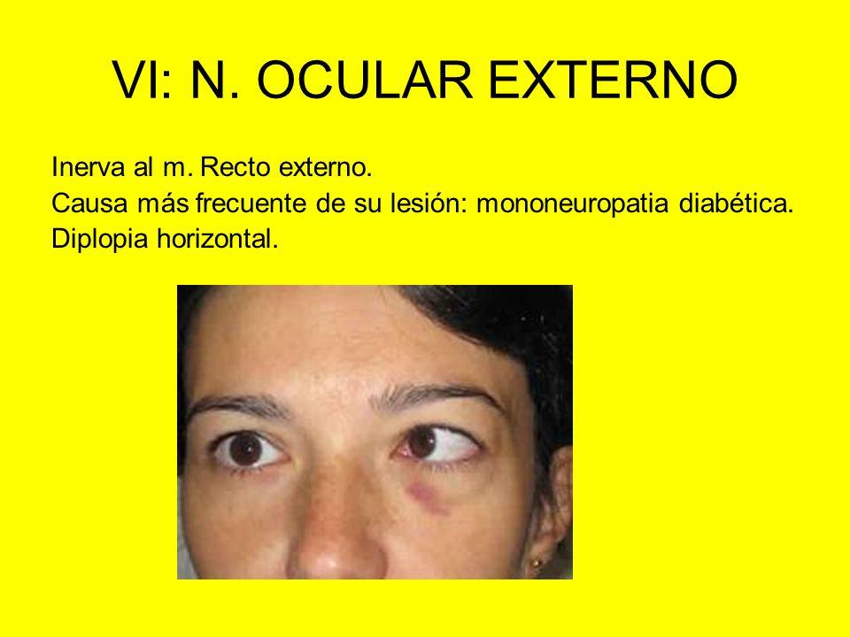 VI: N. OCULAR EXTERNO Inerva al m. Recto externo. Causa más frecuente de su lesión: mononeuropatia diabética. Diplopia horizontal.