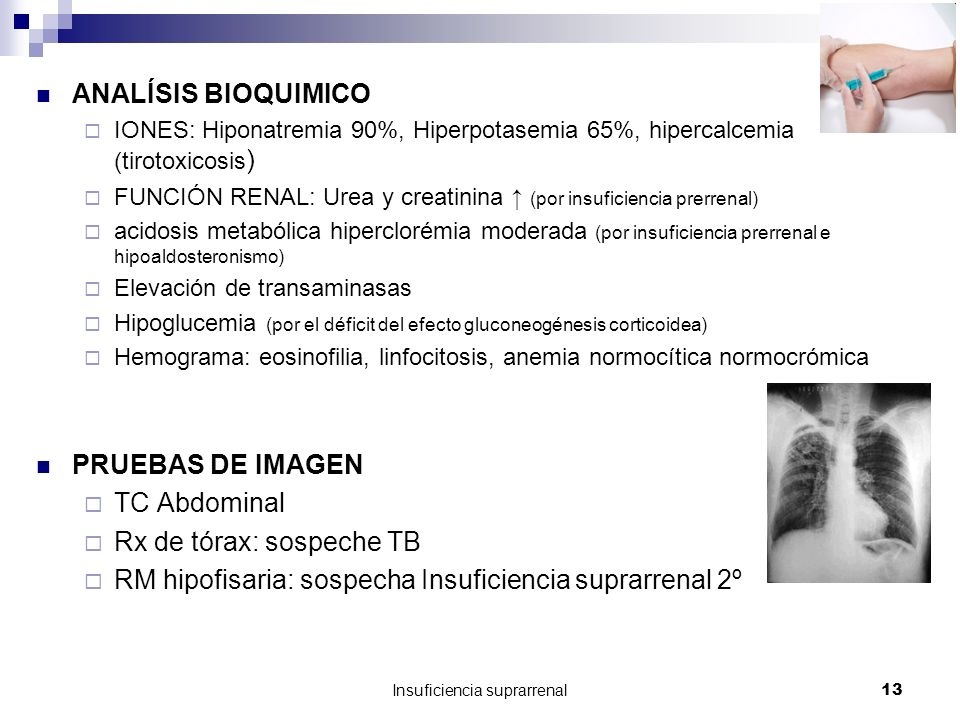Insuficiencia suprarrenal14 Algoritmo diagnostico de la insuficiencia suprarrenal