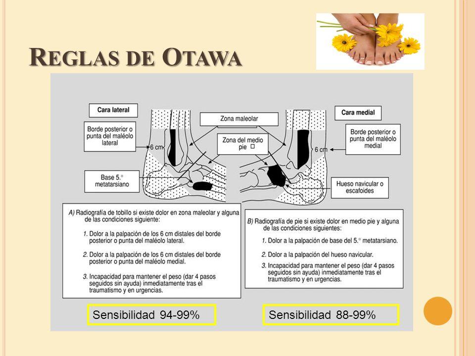 R EGLAS DE O TAWA Sensibilidad 94-99%Sensibilidad 88-99%