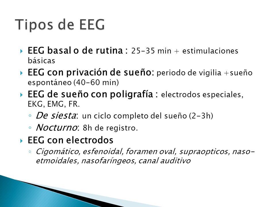 EEG basal o de rutina : 25-35 min + estimulaciones básicas EEG con privación de sueño: periodo de vigilia +sueño espontáneo (40-60 min) EEG de sueño con poligrafía : electrodos especiales, EKG, EMG, FR.