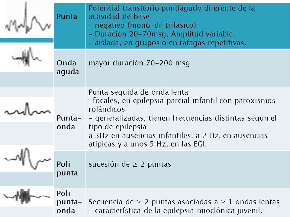 Punta Potencial transitorio puntiagudo diferente de la actividad de base - negativo (mono-di-trifásico) - Duración 20-70msg, Amplitud variable.