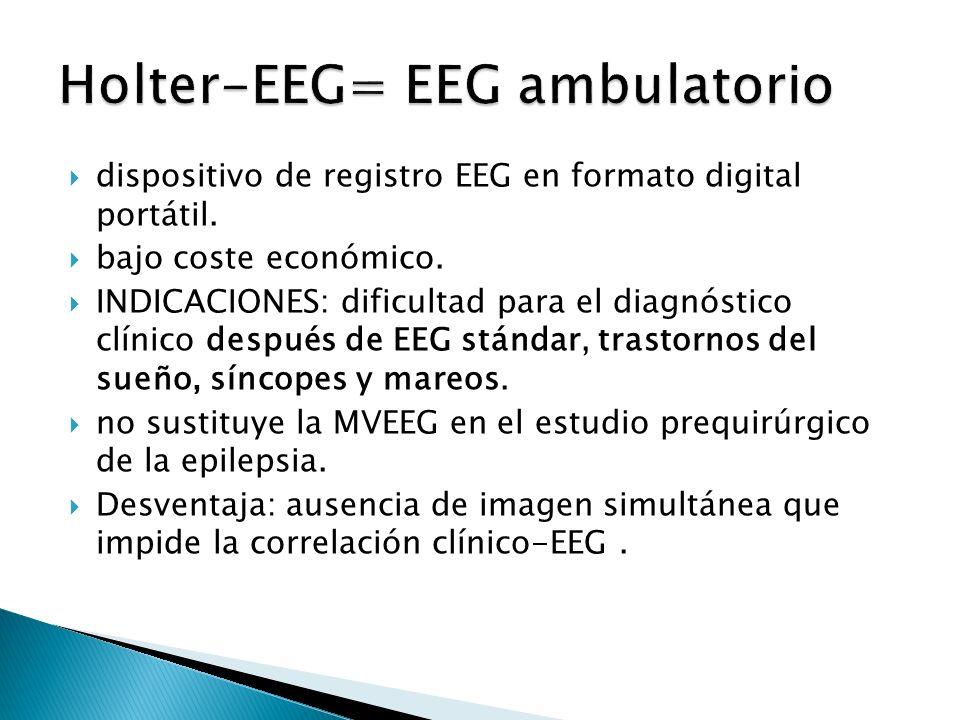 dispositivo de registro EEG en formato digital portátil.
