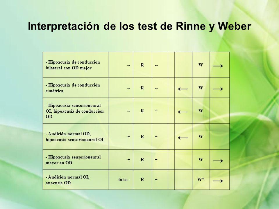 Interpretación de los test de Rinne y Weber - Hipoacusia de conducción bilateral con OD mejor --R W - Hipoacusia de conducción simétrica --R W - Hipoa