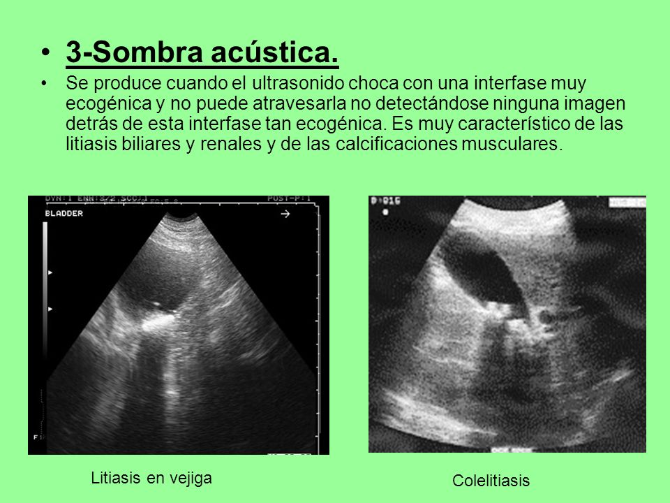 3-Sombra acústica. Se produce cuando el ultrasonido choca con una interfase muy ecogénica y no puede atravesarla no detectándose ninguna imagen detrás