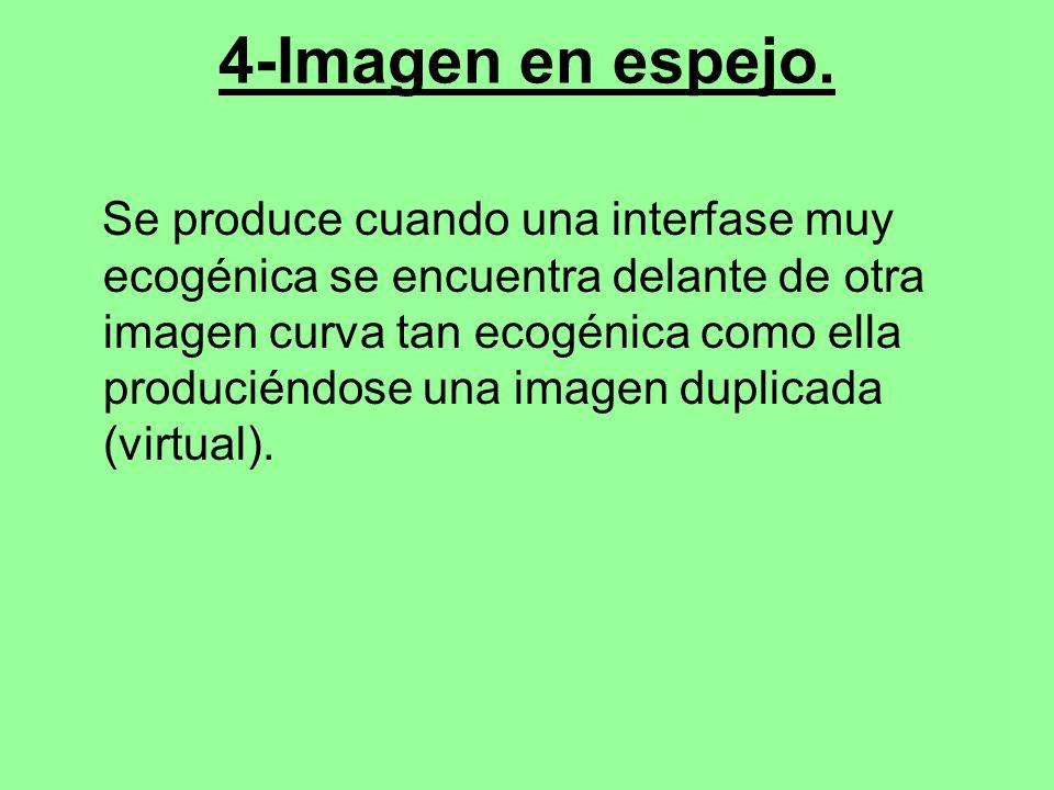 4-Imagen en espejo. Se produce cuando una interfase muy ecogénica se encuentra delante de otra imagen curva tan ecogénica como ella produciéndose una
