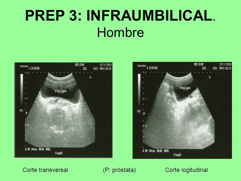 PREP 3: INFRAUMBILICAL. Hombre Corte transversalCorte logitudinal(P: próstata)