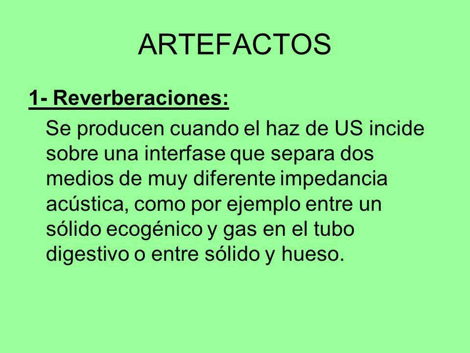 ARTEFACTOS 1- Reverberaciones: Se producen cuando el haz de US incide sobre una interfase que separa dos medios de muy diferente impedancia acústica,