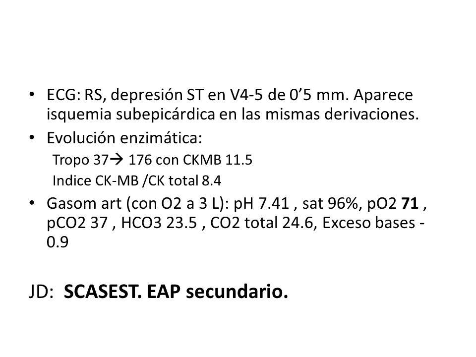 ECG: RS, depresión ST en V4-5 de 05 mm. Aparece isquemia subepicárdica en las mismas derivaciones. Evolución enzimática: Tropo 37 176 con CKMB 11.5 In
