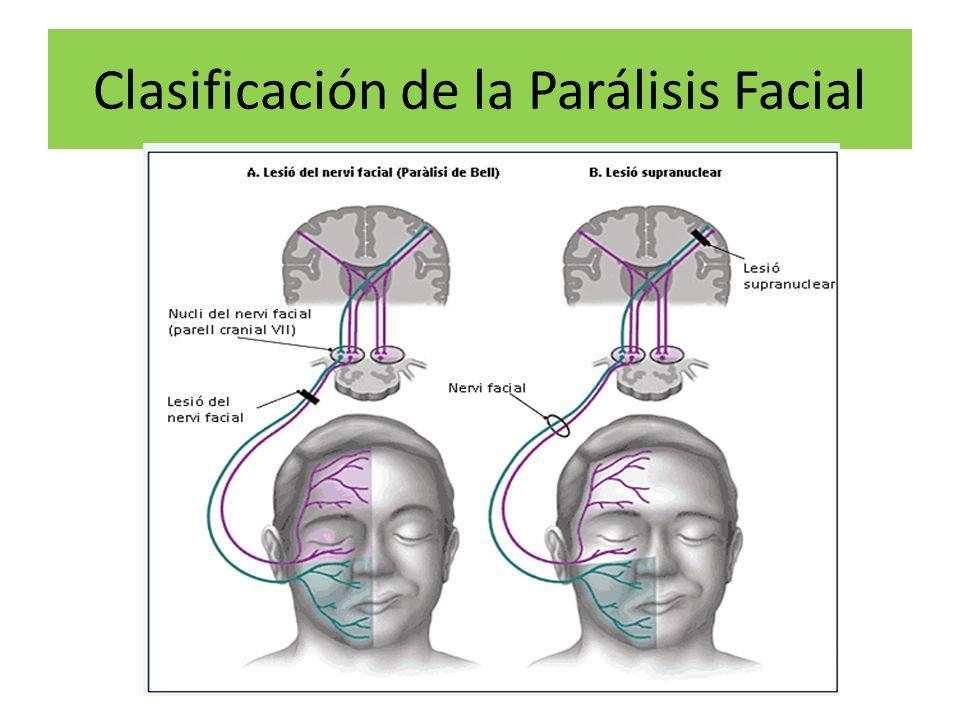 paralisis facial central y periferica pdf
