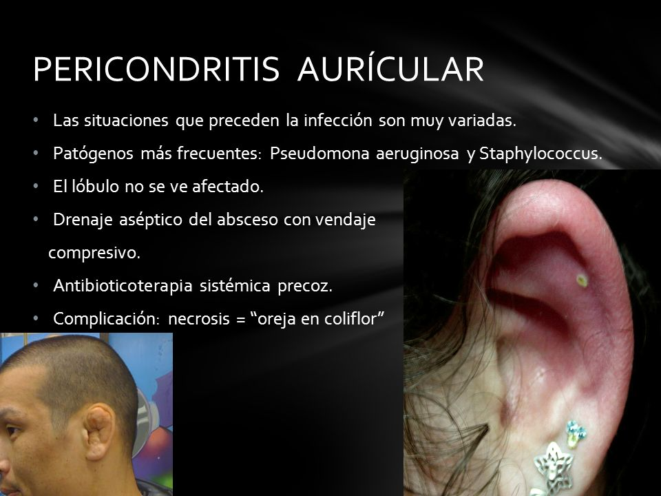 Las situaciones que preceden la infección son muy variadas. Patógenos más frecuentes: Pseudomona aeruginosa y Staphylococcus. El lóbulo no se ve afect