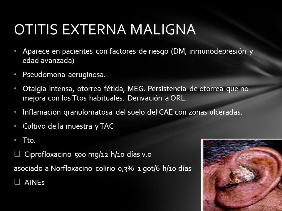 Aparece en pacientes con factores de riesgo (DM, inmunodepresión y edad avanzada) Pseudomona aeruginosa. Otalgia intensa, otorrea fétida, MEG. Persist