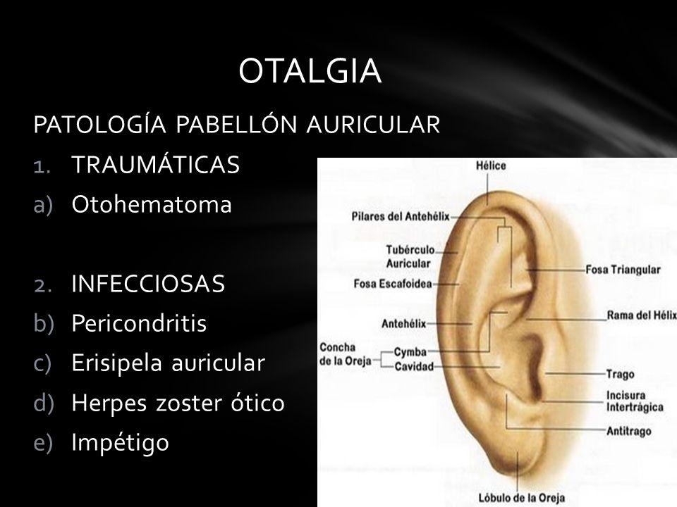 PATOLOGÍA PABELLÓN AURICULAR 1.TRAUMÁTICAS a)Otohematoma 2.INFECCIOSAS b)Pericondritis c)Erisipela auricular d)Herpes zoster ótico e)Impétigo OTALGIA