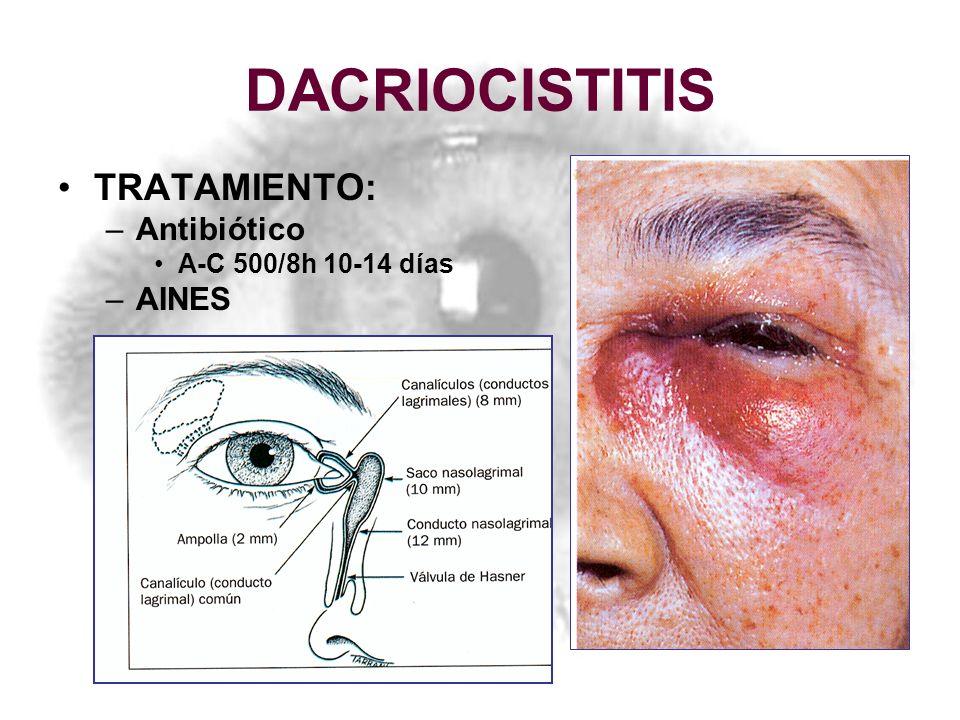 DACRIOCISTITIS TRATAMIENTO: –Antibiótico A-C 500/8h 10-14 días –AINES