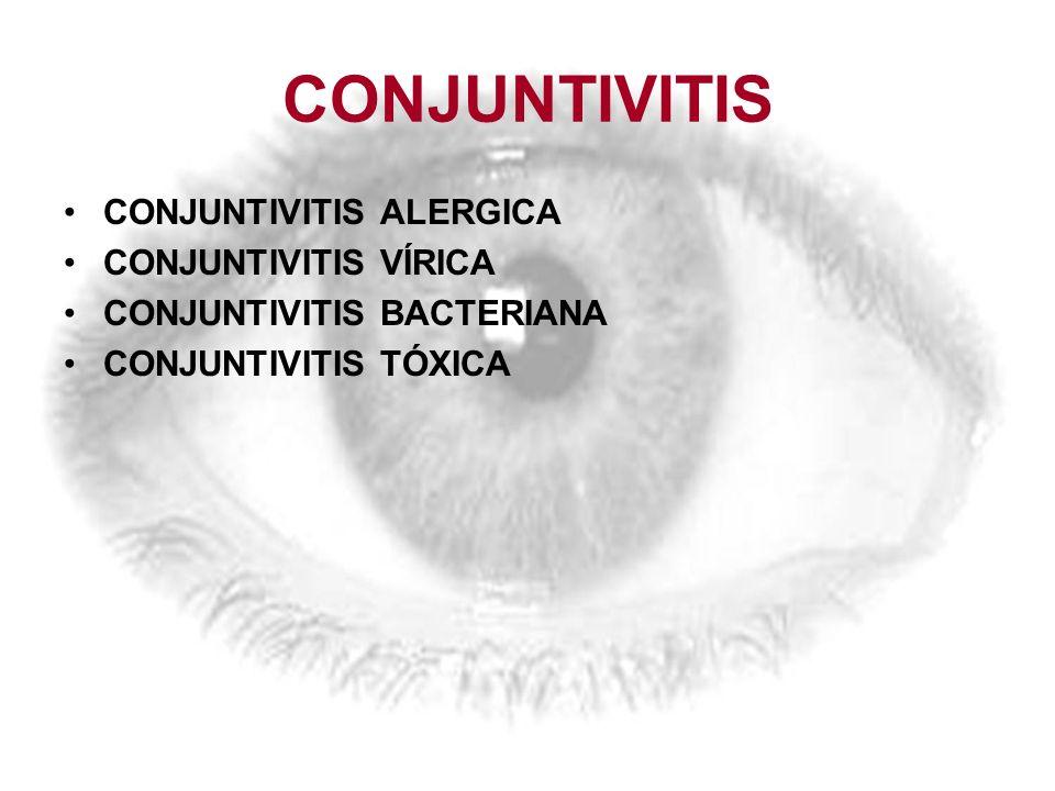 CONJUNTIVITIS CONJUNTIVITIS ALERGICA CONJUNTIVITIS VÍRICA CONJUNTIVITIS BACTERIANA CONJUNTIVITIS TÓXICA