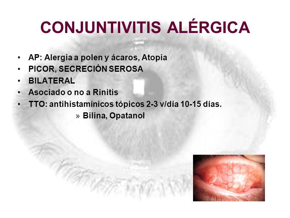 CONJUNTIVITIS ALÉRGICA AP: Alergia a polen y ácaros, Atopia PICOR, SECRECIÓN SEROSA BILATERAL Asociado o no a Rinitis TTO: antihistamínicos tópicos 2-