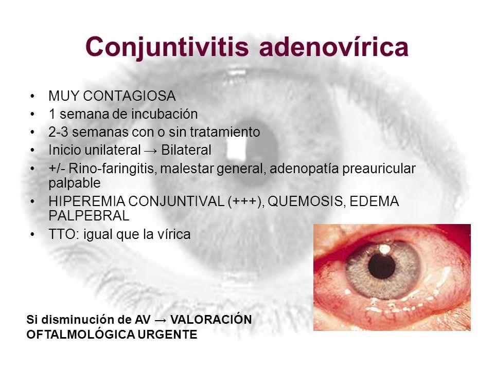 Conjuntivitis adenovírica MUY CONTAGIOSA 1 semana de incubación 2-3 semanas con o sin tratamiento Inicio unilateral Bilateral +/- Rino-faringitis, mal