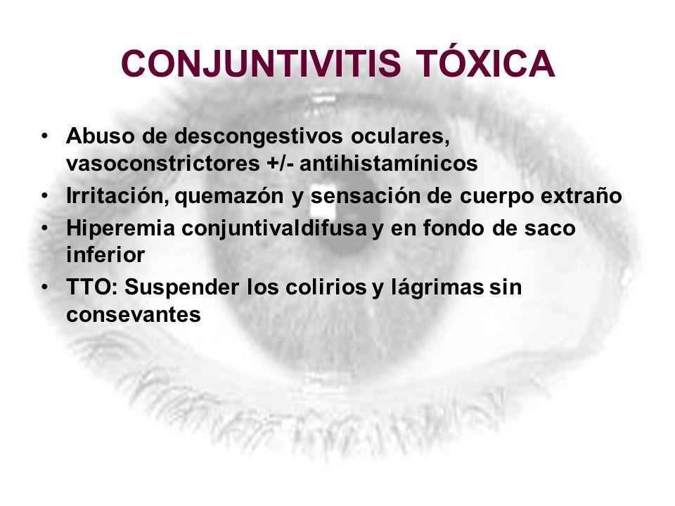 CONJUNTIVITIS TÓXICA Abuso de descongestivos oculares, vasoconstrictores +/- antihistamínicos Irritación, quemazón y sensación de cuerpo extraño Hiper