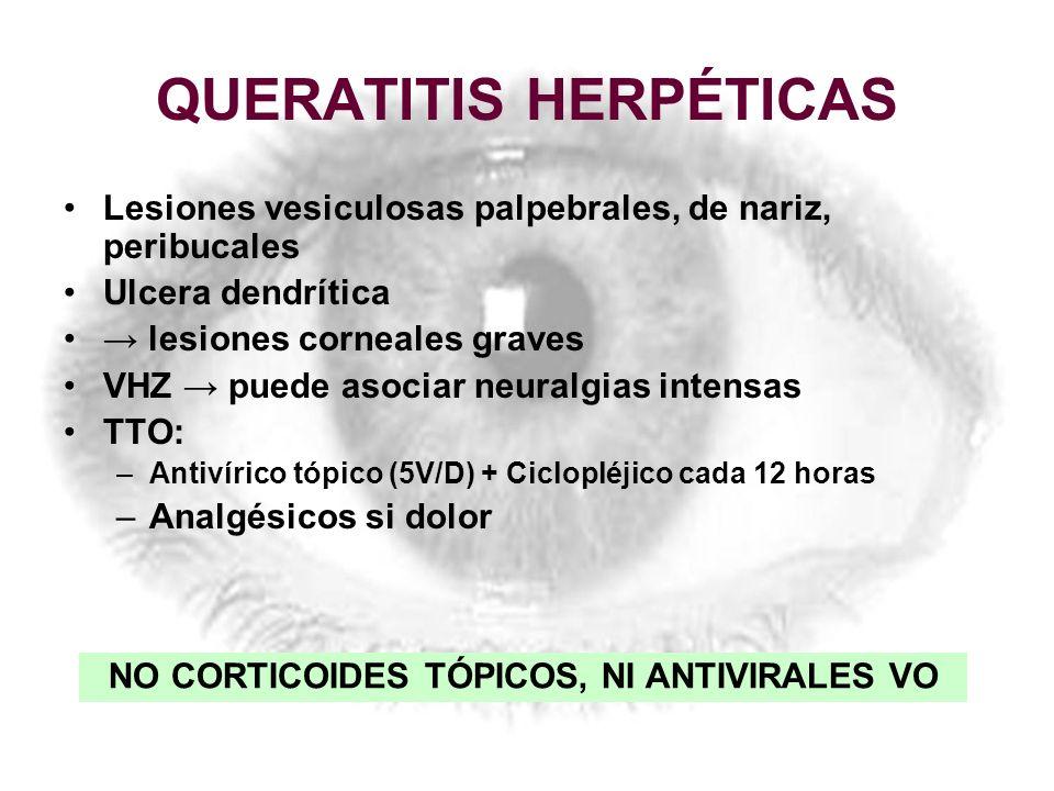 QUERATITIS HERPÉTICAS Lesiones vesiculosas palpebrales, de nariz, peribucales Ulcera dendrítica lesiones corneales graves VHZ puede asociar neuralgias
