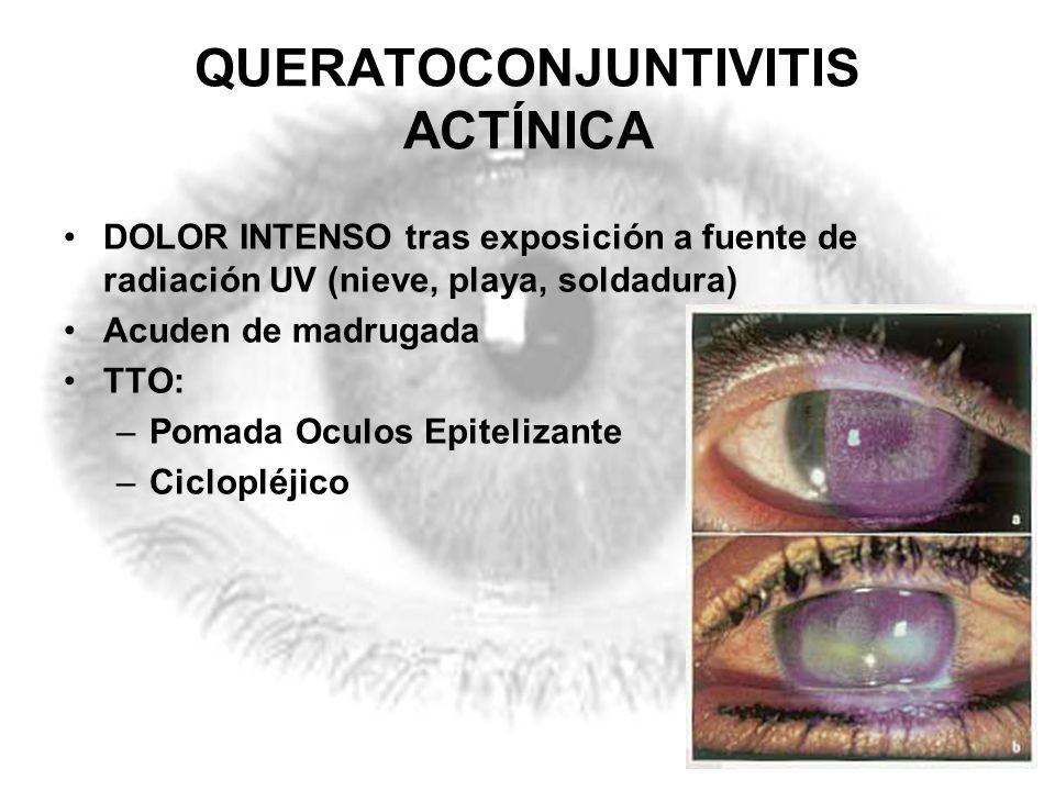 QUERATOCONJUNTIVITIS ACTÍNICA DOLOR INTENSO tras exposición a fuente de radiación UV (nieve, playa, soldadura) Acuden de madrugada TTO: –Pomada Oculos