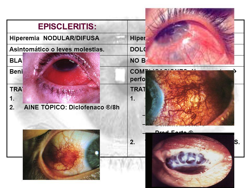 EPISCLERITIS:ESCLERITIS: Hiperemia NODULAR/DIFUSAHiperemia más intensa, AZULADA. Asintomático o leves molestias.DOLOR importante. BLANQUEA con VC tópi