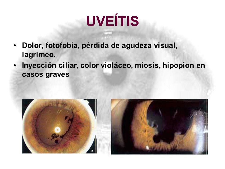UVEÍTIS Dolor, fotofobia, pérdida de agudeza visual, lagrimeo. Inyección ciliar, color violáceo, miosis, hipopion en casos graves