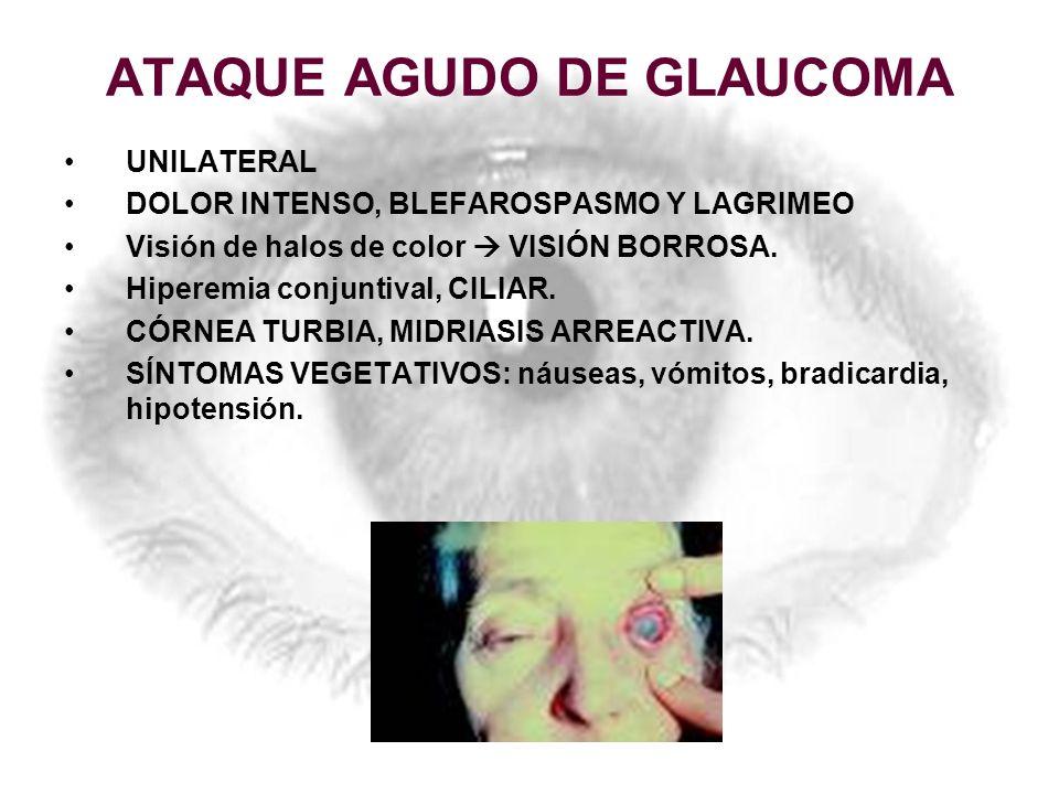 ATAQUE AGUDO DE GLAUCOMA UNILATERAL DOLOR INTENSO, BLEFAROSPASMO Y LAGRIMEO Visión de halos de color VISIÓN BORROSA. Hiperemia conjuntival, CILIAR. CÓ