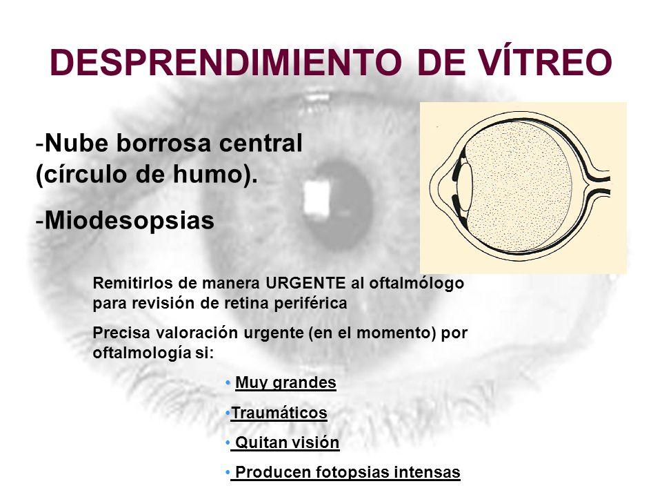 DESPRENDIMIENTO DE VÍTREO -Nube borrosa central (círculo de humo). -Miodesopsias Remitirlos de manera URGENTE al oftalmólogo para revisión de retina p