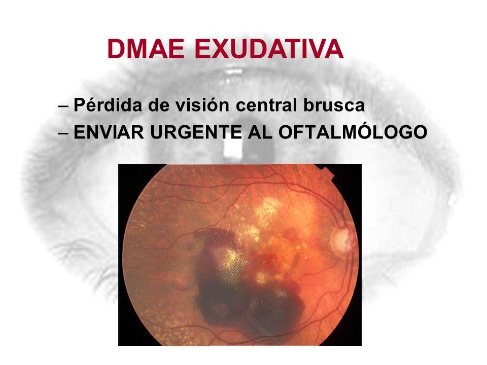 –Pérdida de visión central brusca –ENVIAR URGENTE AL OFTALMÓLOGO DMAE EXUDATIVA