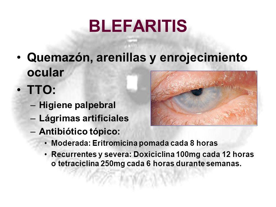 BLEFARITIS Quemazón, arenillas y enrojecimiento ocular TTO: –Higiene palpebral –Lágrimas artificiales –Antibiótico tópico: Moderada: Eritromicina poma