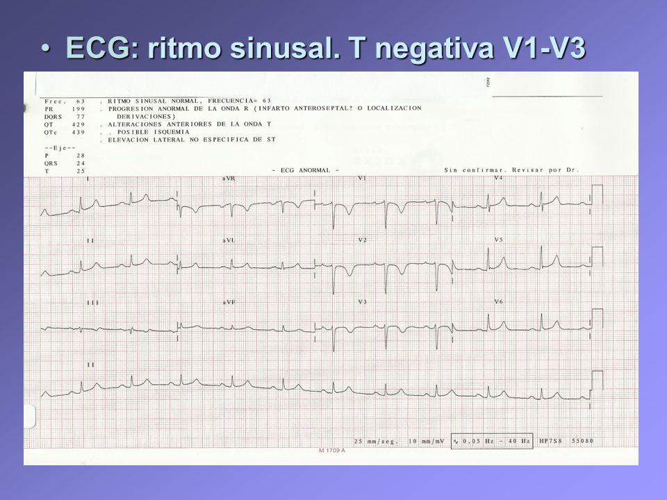ECG: ritmo sinusal. T negativa V1-V3ECG: ritmo sinusal. T negativa V1-V3