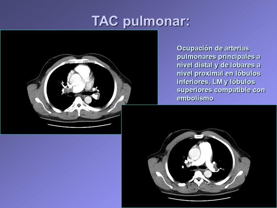Ocupación de arterias pulmonares principales a nivel distal y de lobares a nivel proximal en lóbulos inferiores, LM y lóbulos superiores compatible co