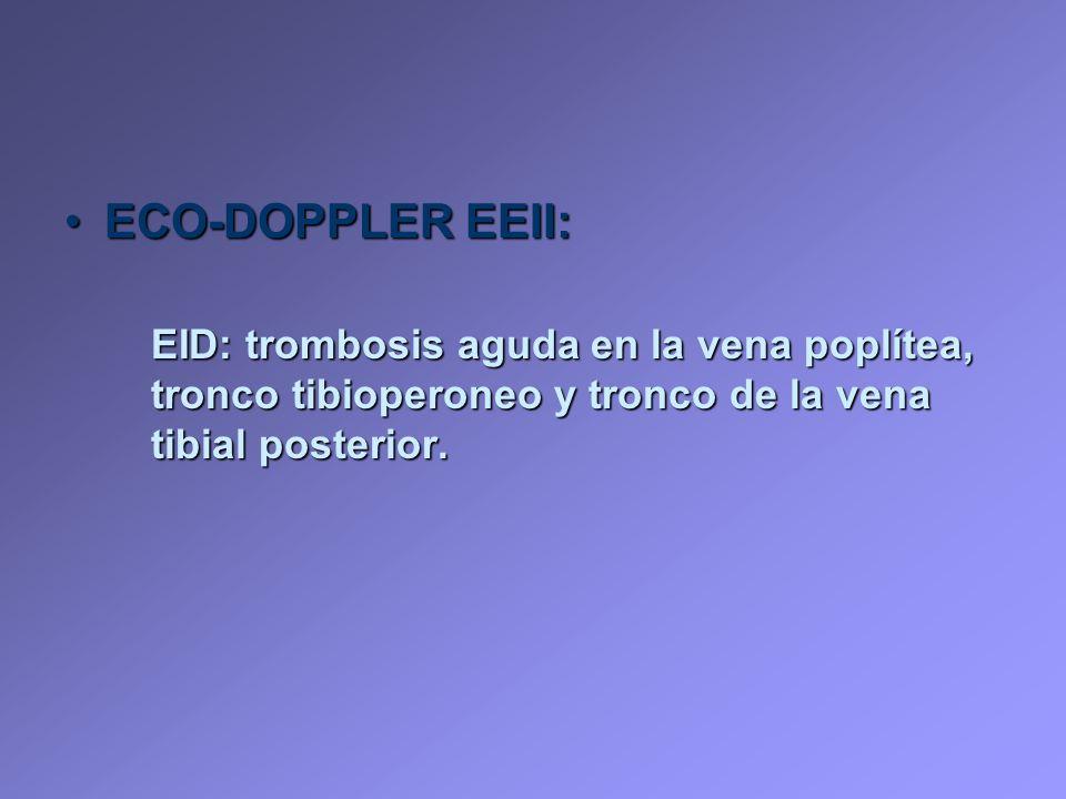 ECO-DOPPLER EEII:ECO-DOPPLER EEII: EID: trombosis aguda en la vena poplítea, tronco tibioperoneo y tronco de la vena tibial posterior.