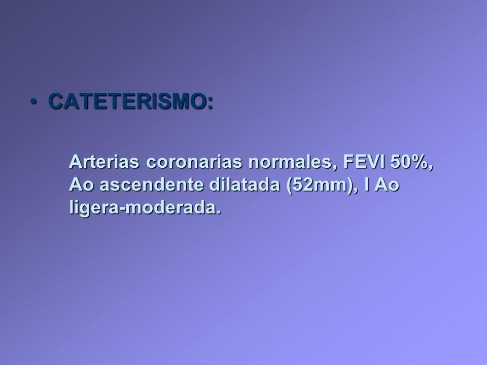 CATETERISMO:CATETERISMO: Arterias coronarias normales, FEVI 50%, Ao ascendente dilatada (52mm), I Ao ligera-moderada.